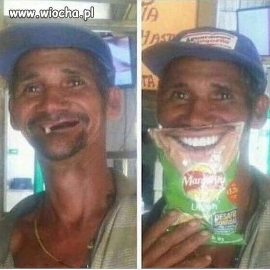 Piekny-usmiech-z-chipsami