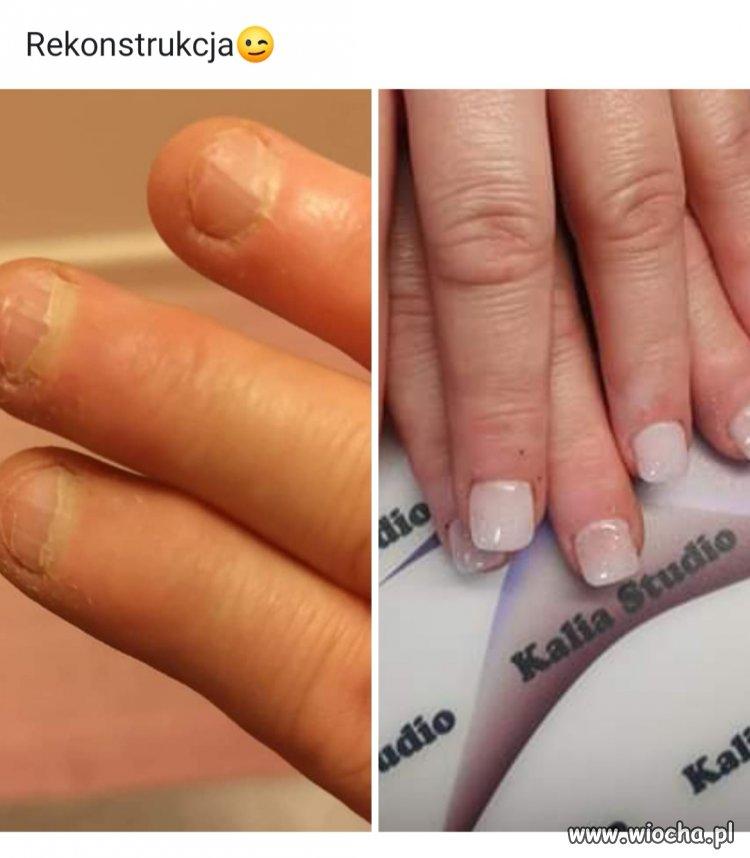 Rekonstrukcja paznokci.