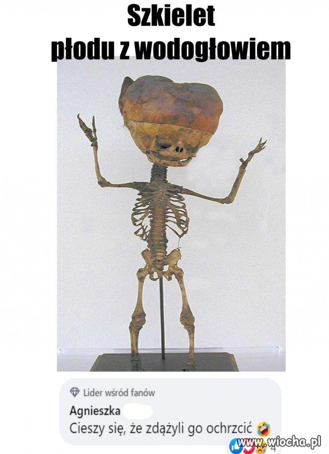 Szkielet-plodu-z-wodoglowiem